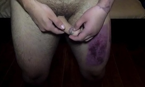 TJ Travess, First video teaser, FTM phalloplasty
